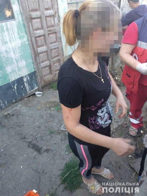 На Одещине местные нашли гранаты и принесли их домой: Итог печален - фото 201427