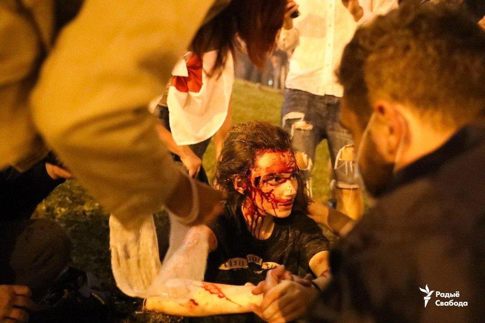 В Беларуси ОМОН устроил кровавую бойню, пострадали сотни человек – ФОТО - фото 203783