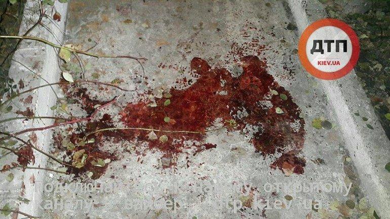 Неизвестный устроил стрельбу возле офиса частной фирмы в центре столицы - фото 1