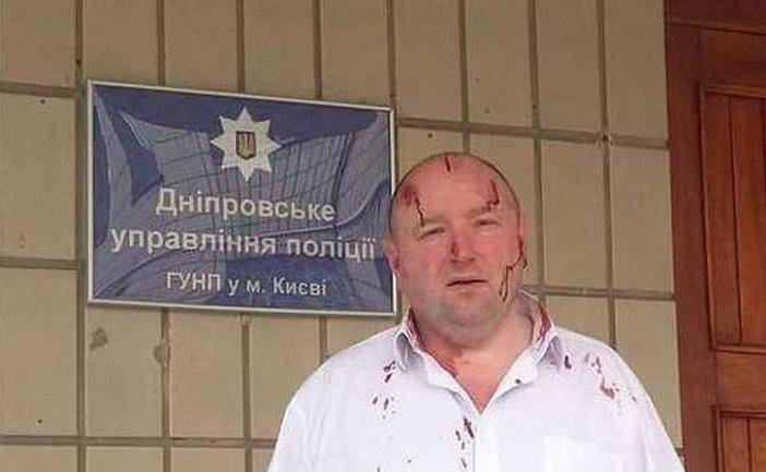 Правозащитника избили три человека - фото 1