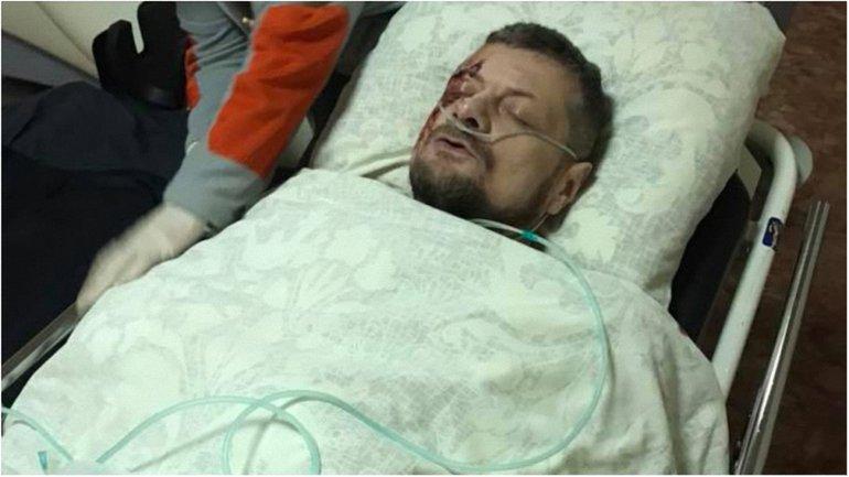 Мосийчук чудом уцелел после взрыва - фото 1