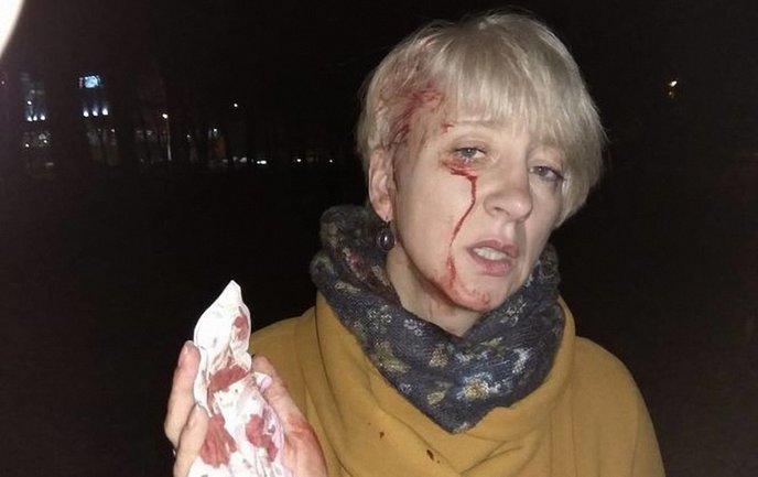 В Полтаве напали на судью Ларису Гольник - фото 1