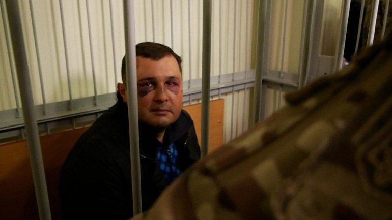 Шепелев заявил, что его избили - фото 1