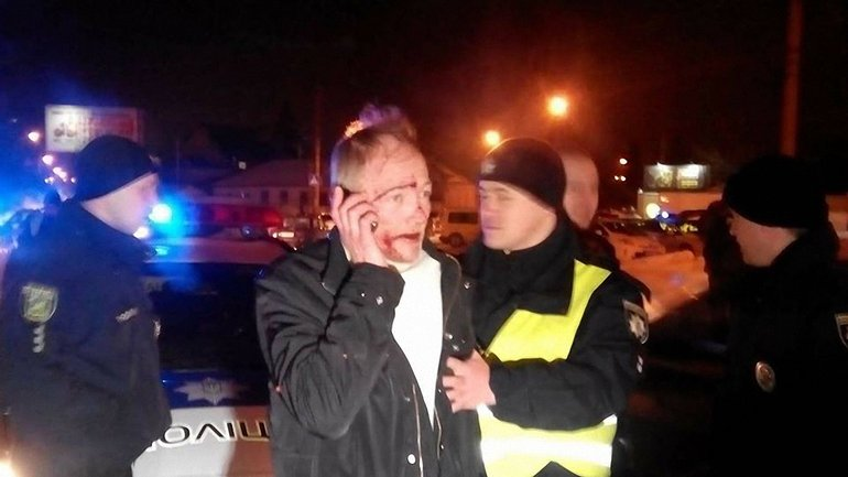 Пьяный водитель устроил пять ДТП в Харькове - фото 1