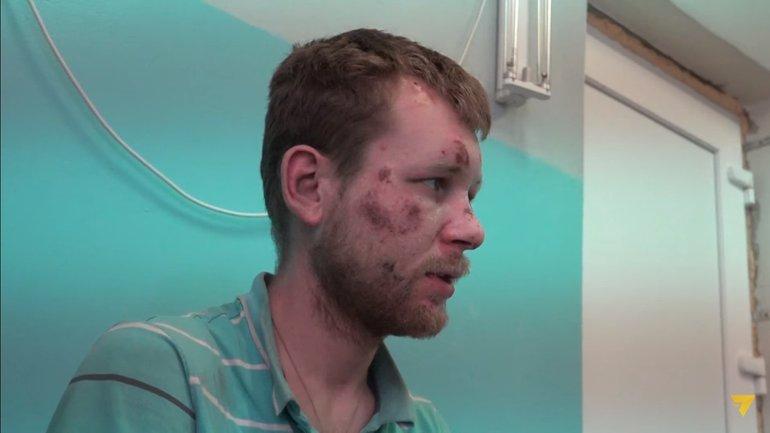 Мужчину удерживали в гараже на цепи - фото 1
