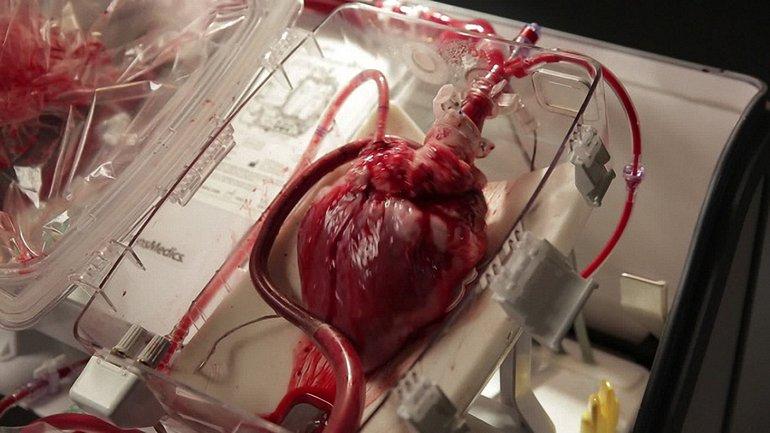 Содержание закона о трансплантации органов - фото 1