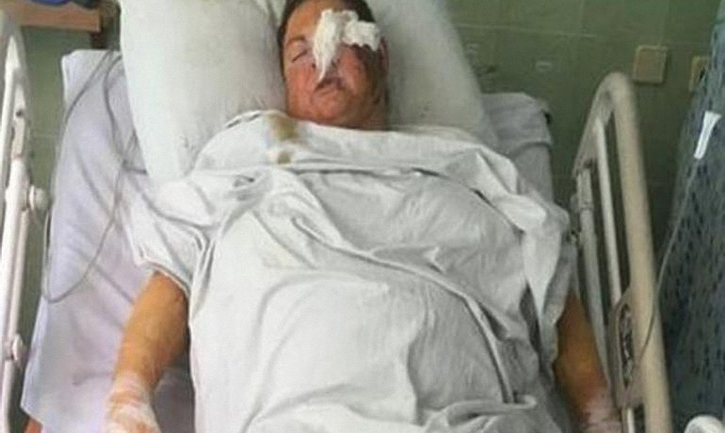 Нападение на Гандзюк организовал 41-летний активист-ветеран АТО - фото 1