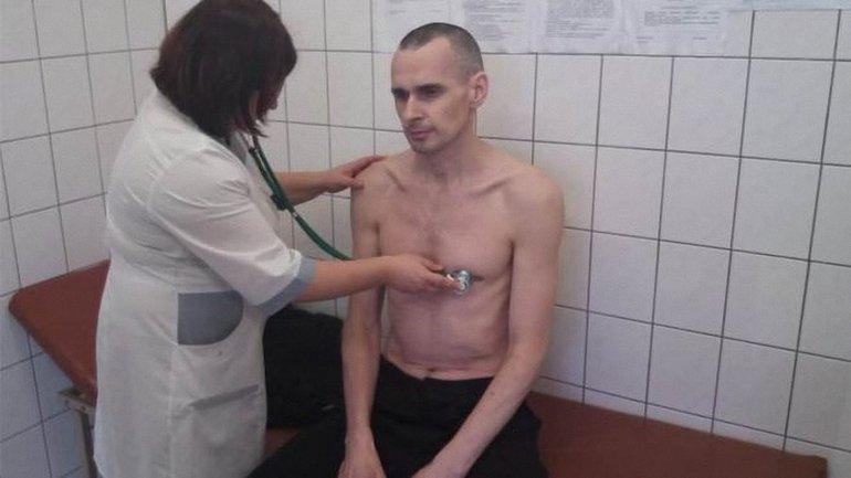 У Олега Сенцова началось обострение - фото 1