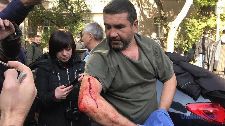 Одного из нападавших на корреспондента пропагандистского канала задержали - фото 1