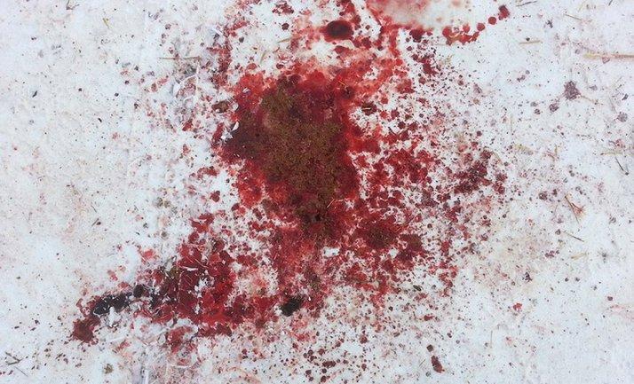 В Харькове запускающему фейерверки оторвало кисть руки - фото 1