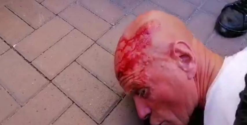 """Разбили голову: Мужчина хотел """"увидеть Зеленского"""" – ФОТО - фото 1"""