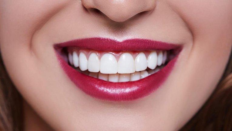Виниры - простой способ сделать улыбку идеальной - фото 1
